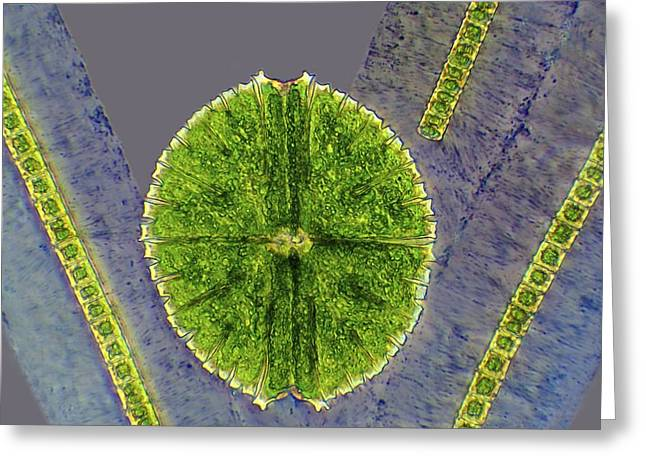 Micrasterias Sp. Greeting Cards - Desmids, light micrograph Greeting Card by Science Photo Library