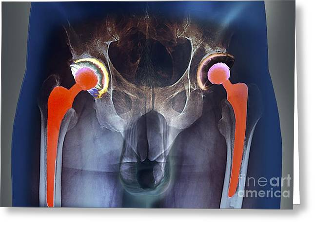 Double X Greeting Cards - Double Hip Replacement, X-ray Greeting Card by Zephyr