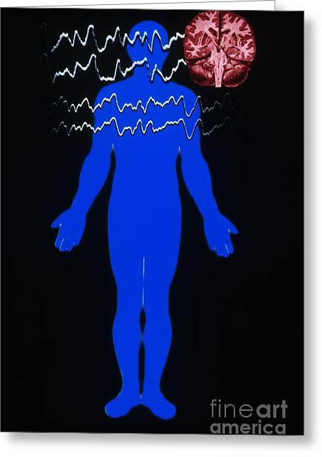 Eeg Of Tonic-clonic Seizure Greeting Card by Scott Camazine