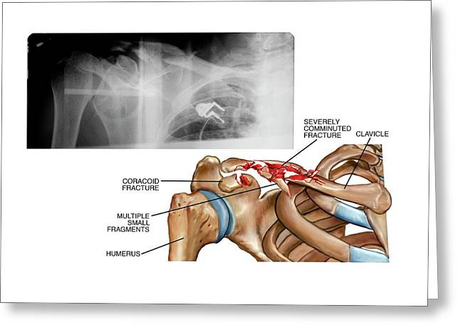 Fractured Collar Bone Greeting Card by John T. Alesi