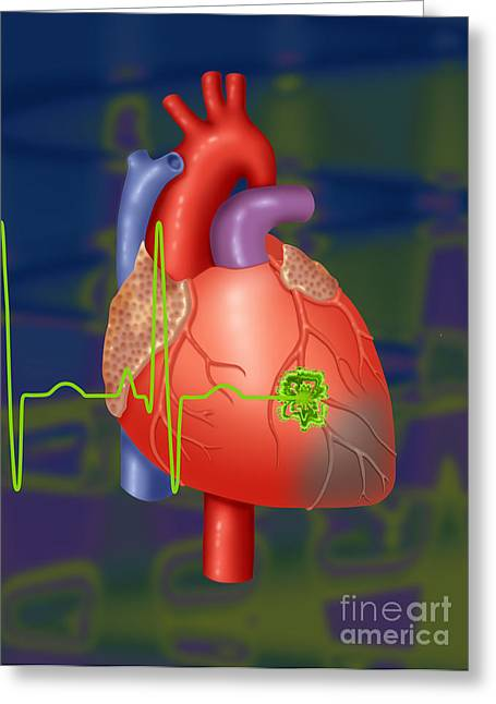 Acute Greeting Cards - Heart Attack Greeting Card by Monica Schroeder / Science Source