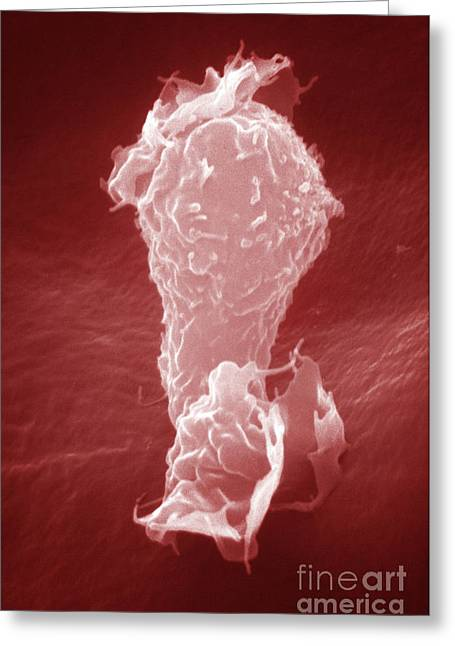 Scanning Electron Micrograph Greeting Cards - Human Macrophage Greeting Card by David M. Phillips