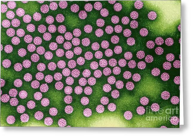 Tem Greeting Cards - Human Papillomavirus Greeting Card by Kwangshin Kim