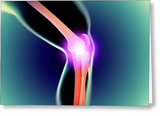 Knee Joint Greeting Card by Science Artwork