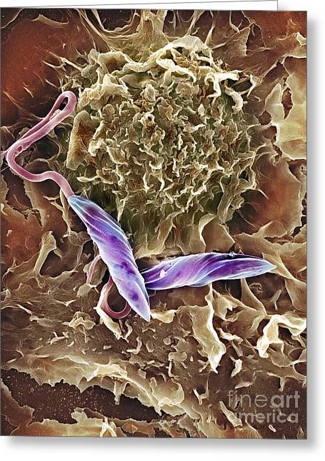 Engulfing Greeting Cards - Macrophage Attacking A Foreign Body, Sem Greeting Card by Spl