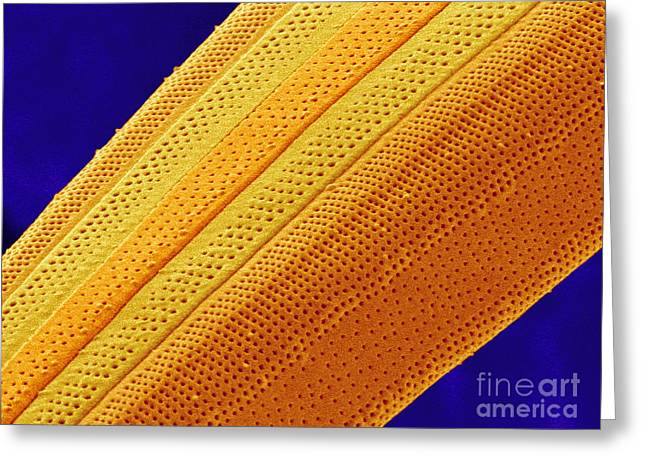 Striae Greeting Cards - Marine Diatom Alga, Sem Greeting Card by Susumu Nishinaga
