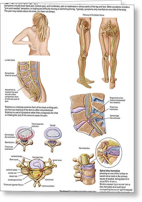 Sciatic Nerves Greeting Cards - Medical Chart Showing The Signs Greeting Card by Stocktrek Images