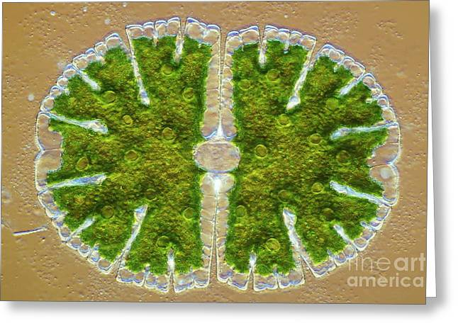 Algal Greeting Cards - Microsterias Green Alga, Light Greeting Card by Frank Fox