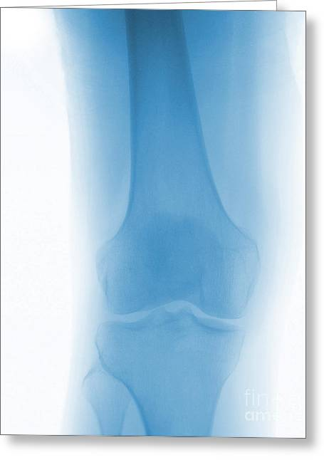 Medical X-ray Greeting Cards - Normal Knee X-ray Greeting Card by Spencer Sutton