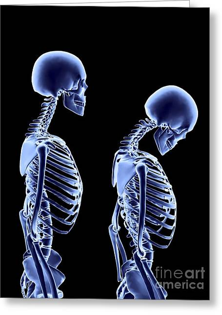 Backbone Greeting Cards - Osteoporosis Greeting Card by Alfred Pasieka