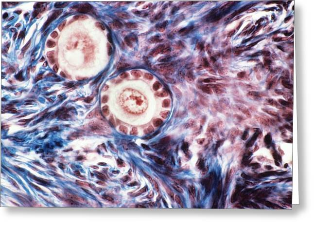 Germ Greeting Cards - Ovarian follicles, light micrograph Greeting Card by Science Photo Library