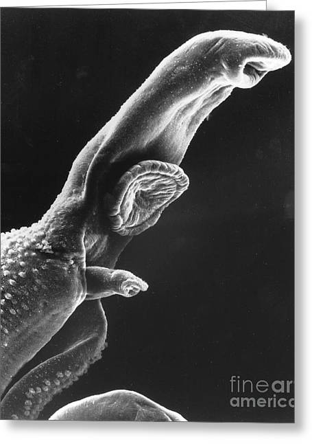 Scanning Electron Microscope Greeting Cards - Scanning Electron Micrograph Greeting Card by National Institutes of Health