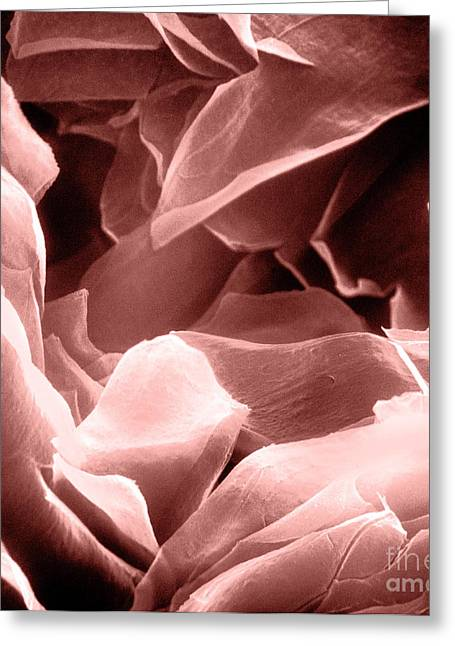Sem Greeting Cards - Sem Of Human Skin Greeting Card by David M. Phillips