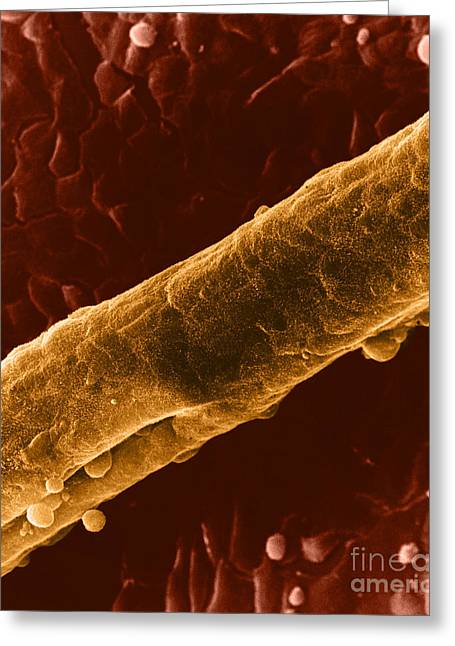 Tubules Greeting Cards - Seminiferous Tubule, Sem Greeting Card by David M. Phillips