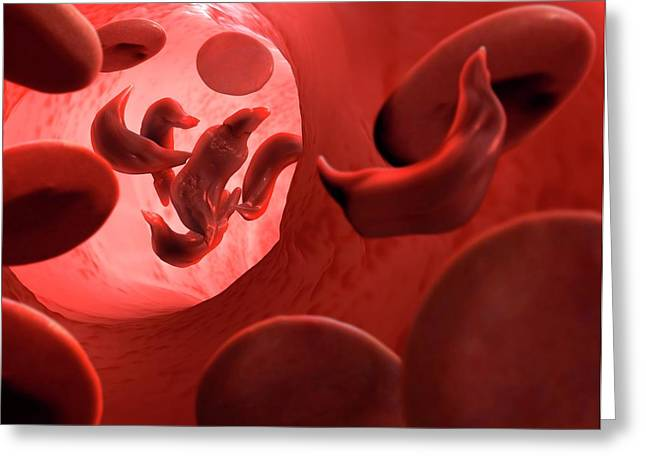 Sickle Cell Anaemia Greeting Card by Tim Vernon
