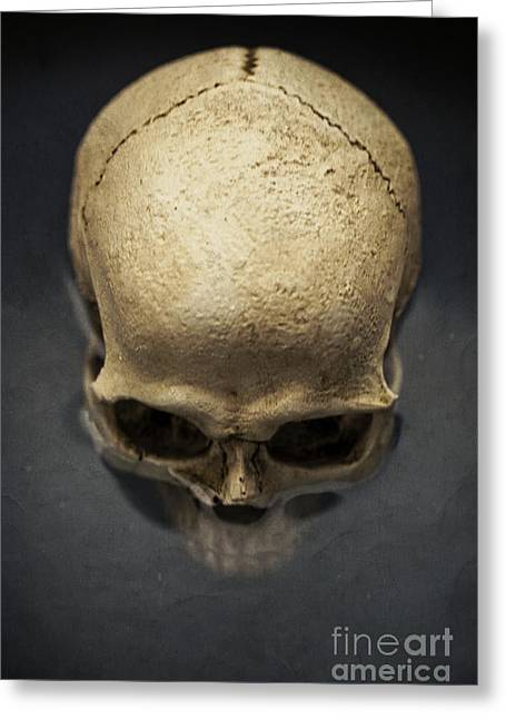 Heal Greeting Cards - Skull  Greeting Card by Edward Fielding
