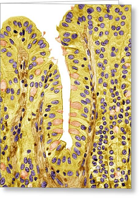 Small Intestine Greeting Cards - Small Intestine Lining, Light Micrograph Greeting Card by Steve Gschmeissner