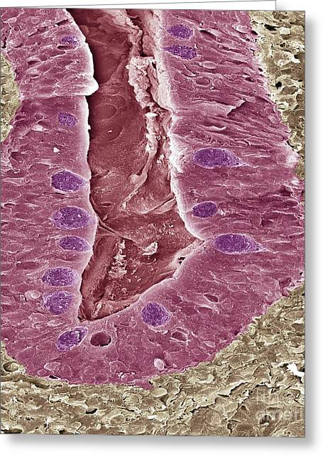 Goblet Greeting Cards - Intestinal Lining, Sem Greeting Card by Steve Gschmeissner
