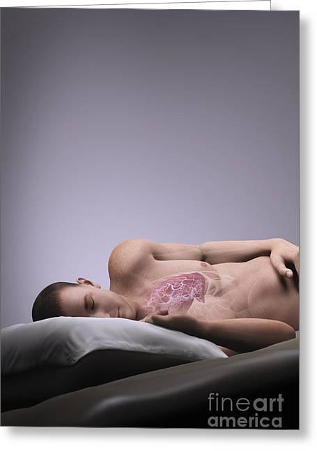 Apnea Greeting Cards - Sleep Apnea Greeting Card by Science Picture Co