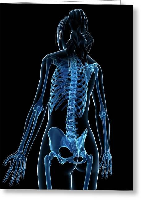 Female Skeleton Greeting Card by Sebastian Kaulitzki
