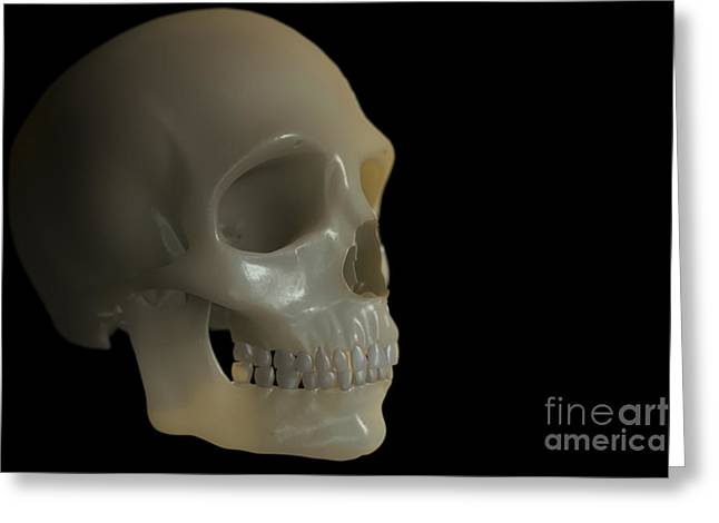 Zygomatic Bones Greeting Cards - The Skull Greeting Card by Science Picture Co