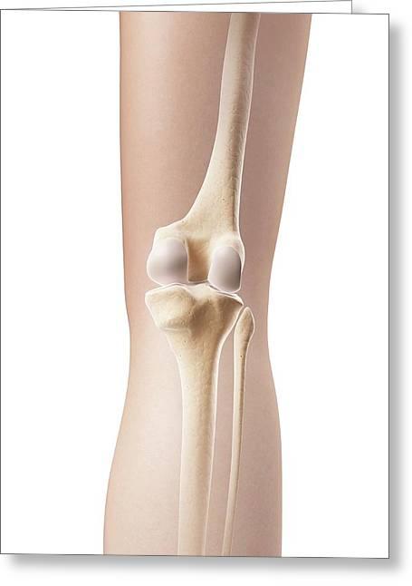Human Knee Joint Greeting Card by Sebastian Kaulitzki