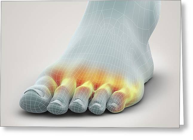 Infection Greeting Cards - Athletes Foot Greeting Card by Science Picture Co