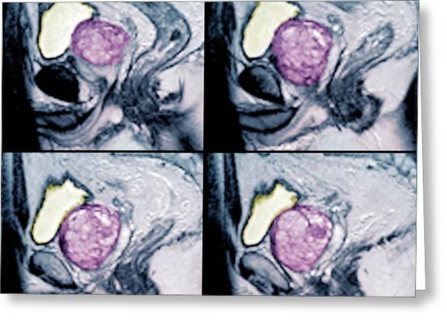 Benign Prostatic Hyperplasia Greeting Card by Zephyr