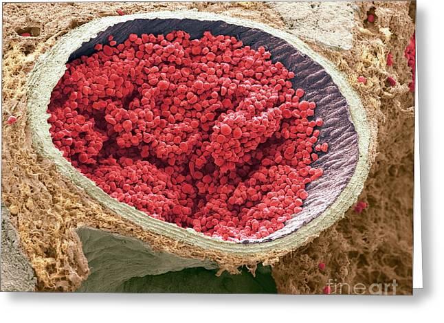 Sem Greeting Cards - Blood-filled Fetal Aorta, Sem Greeting Card by Steve Gschmeissner