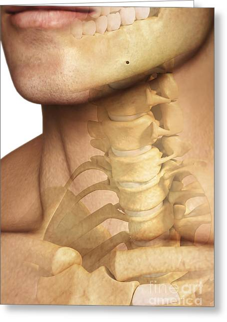 Cervical Vertebrae Greeting Cards - Bones Of The Neck Greeting Card by Science Picture Co