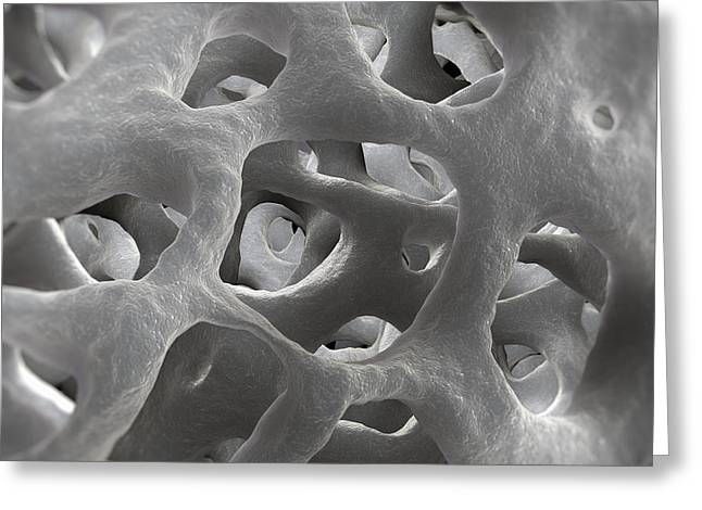 Bone Structure Greeting Cards - Cancellous Bone Greeting Card by Science Picture Co