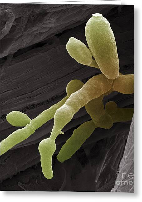 Asexual Greeting Cards - Candida Fungus, Sem Greeting Card by Steve Gschmeissner