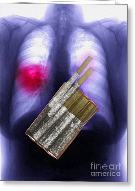 Medical X-ray Greeting Cards - Cigarettes And Lung Cancer Greeting Card by Scott Camazine