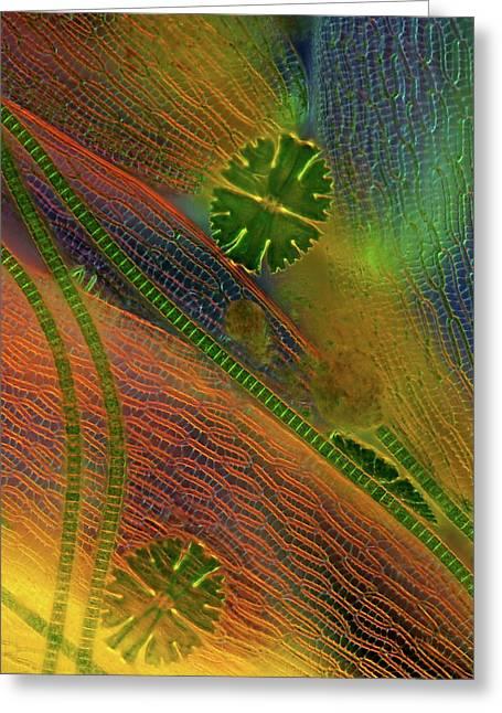 Desmids And Sphagnum Moss Greeting Card by Marek Mis