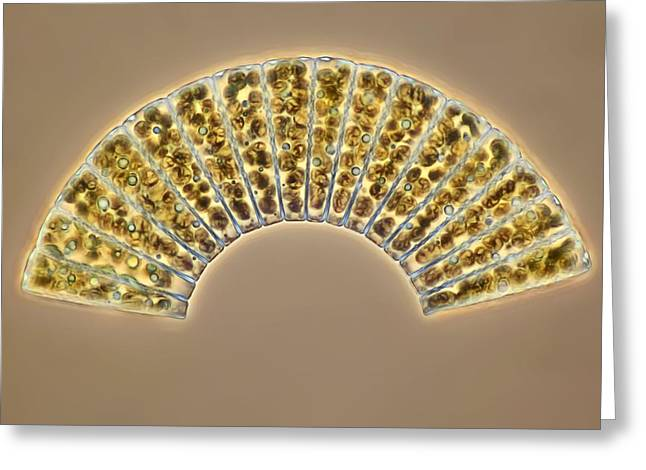Diatom Greeting Cards - Diatoms, light micrograph Greeting Card by Science Photo Library