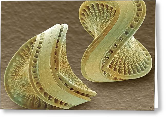 Frustule Photographs Greeting Cards - Diatoms, Sem Greeting Card by Power And Syred