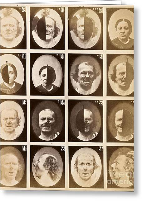 Mechanism Greeting Cards - Duchennes Physiognomy Studies, 1860s Greeting Card by Miriam And Ira D. Wallach Division Of Art, Prints And Photographs
