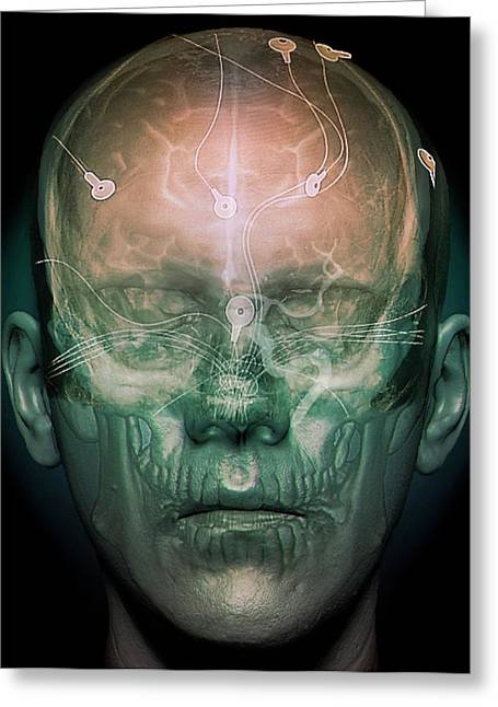 Electroencephalography Greeting Card by Zephyr