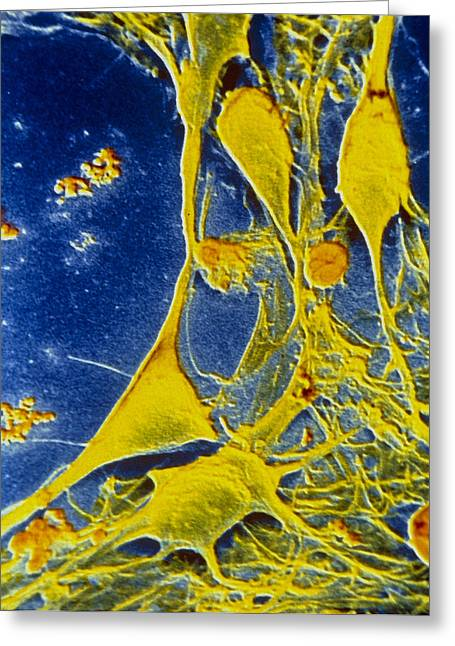 Cerebral Cortex Greeting Cards - False-colour Sem Of Neurones From Cerebral Cortex Greeting Card by Cnri