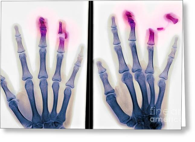 Fingertips Greeting Cards - Fingertip Laceration Injuries, X-rays Greeting Card by Du Cane Medical Imaging Ltd.
