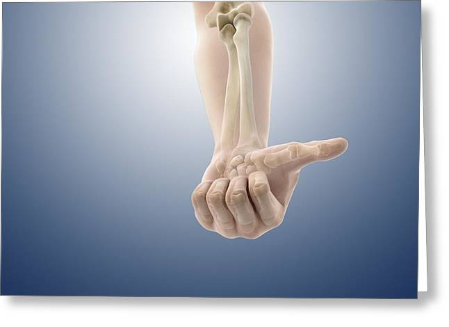 Clenched Fist Greeting Cards - Forearm in supine position, artwork Greeting Card by Science Photo Library