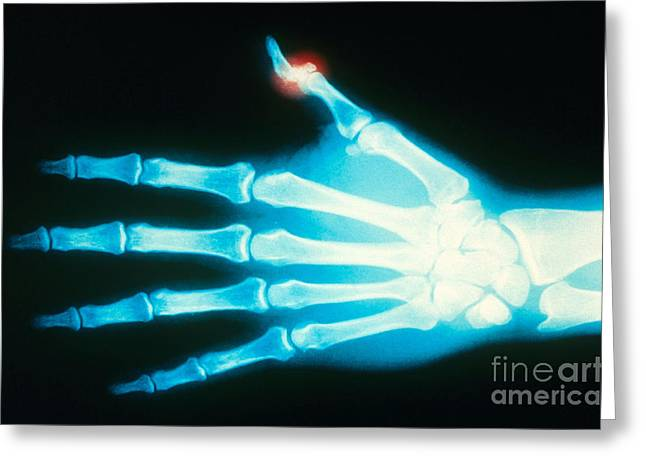 Color Enhanced Greeting Cards - Fractured Thumb, X-ray Greeting Card by Scott Camazine
