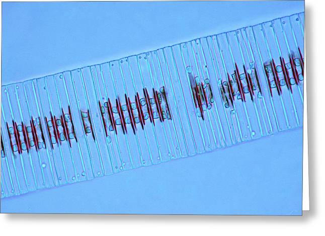 Fragilaria Diatoms Greeting Card by Marek Mis