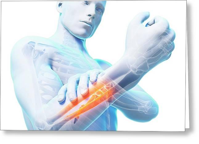 Human Arm Pain Greeting Card by Sebastian Kaulitzki