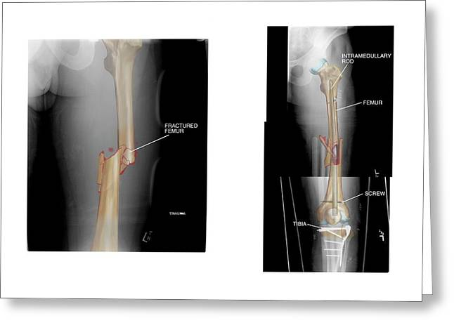 Internal Fixation Of Fractured Femur Greeting Card by John T. Alesi