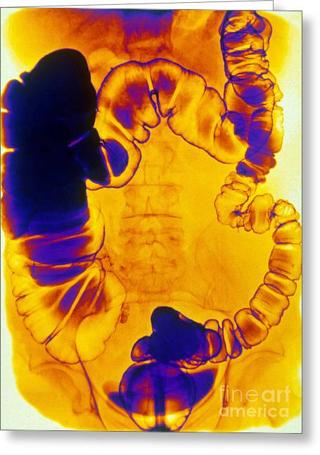Small Intestine Greeting Cards - Large And Small Intestine, Barium X-ray Greeting Card by Scott Camazine