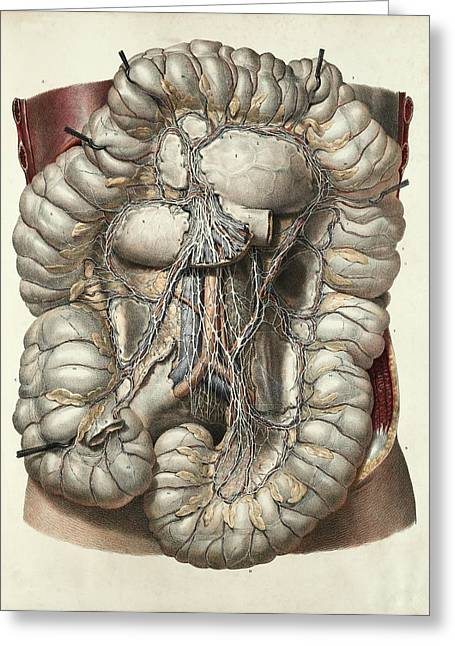 Large Intestine Greeting Card by Science Photo Library