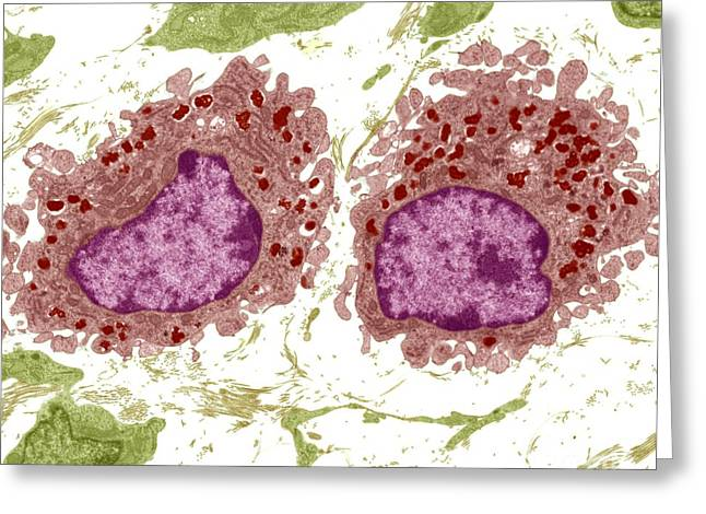 Lysosome Greeting Cards - Macrophage Cells, Tem Greeting Card by Steve Gschmeissner