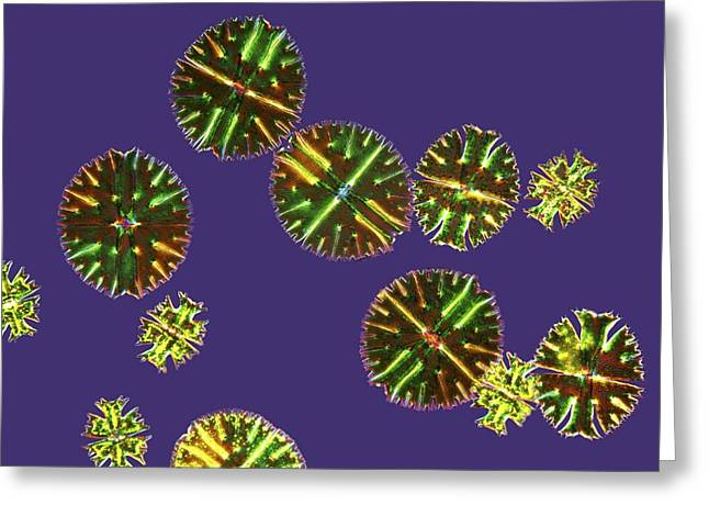 Desmids Greeting Cards - Micrasterias desmids, light micrograph Greeting Card by Science Photo Library