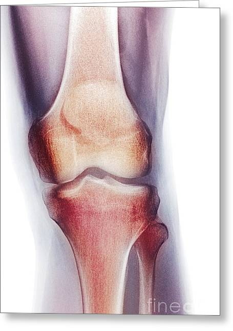 Shin Bone Greeting Cards - Normal Knee, X-ray Greeting Card by Du Cane Medical Imaging Ltd.